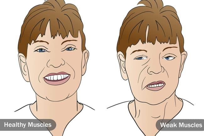 woman with healthy face muscle verses weak