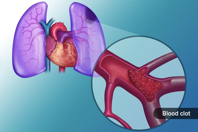 clot in lung illustration