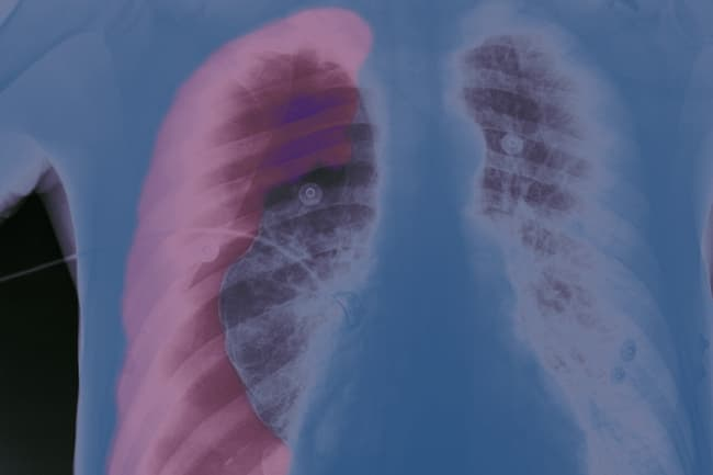 collapsed lung xray