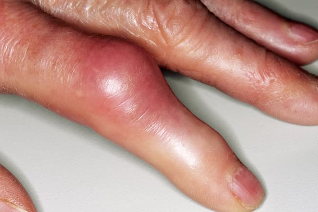 Causes of Swollen Fingers in Pictures