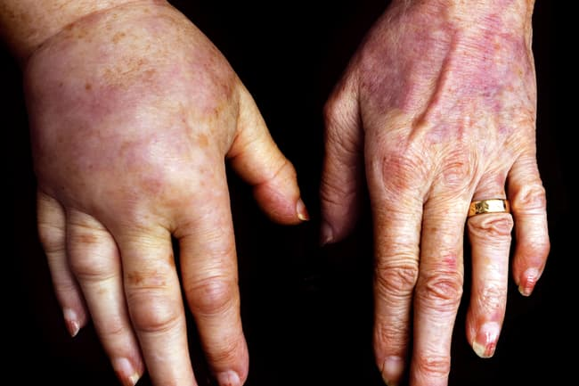 lymphedema hands