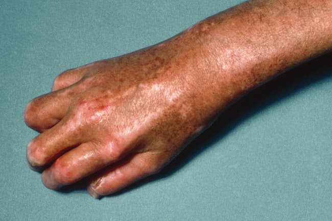 scleroderma on arm and hand