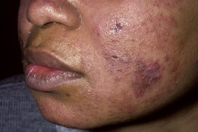 Photo of lupus