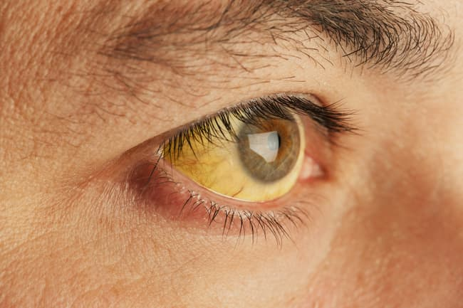 photo of yellow eye