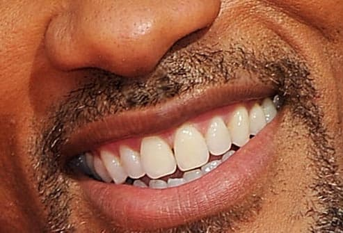 Will Smith's Smile