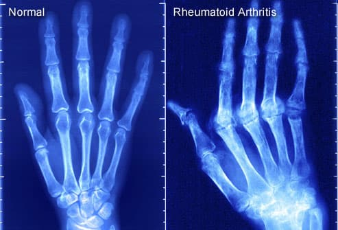 X-ray of rheumatoid arthritis