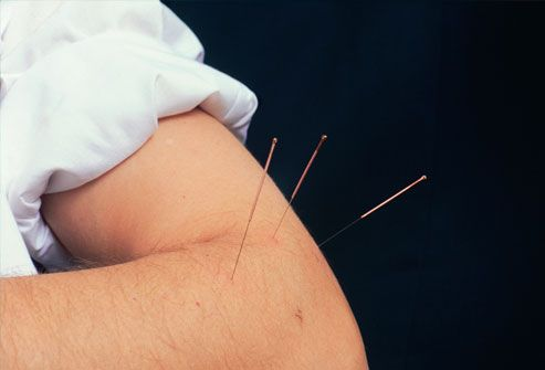 three acupuncture needles near the elbow