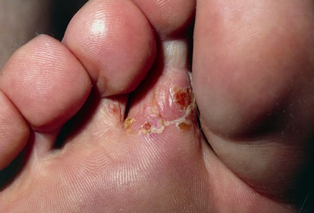 Close-up of athlete's foot (tinea pedis) infection
