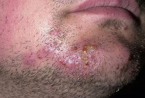 Ringworm of the Beard (Tinea Barbae)
