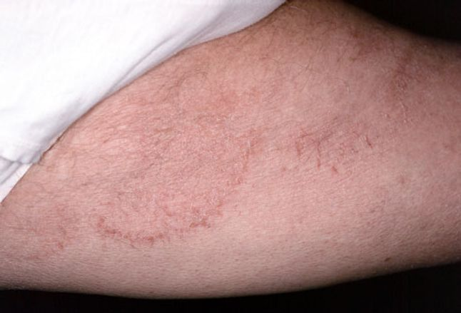 Tinea cruris, also known as jock itch