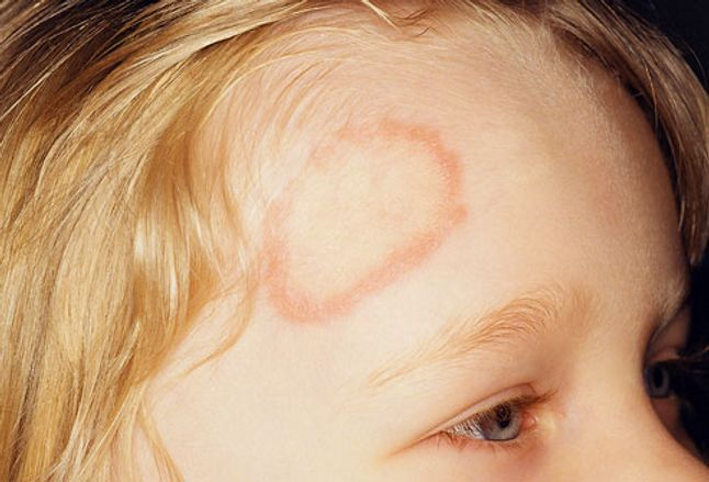 Close-up of ringworm on the forehead of a child