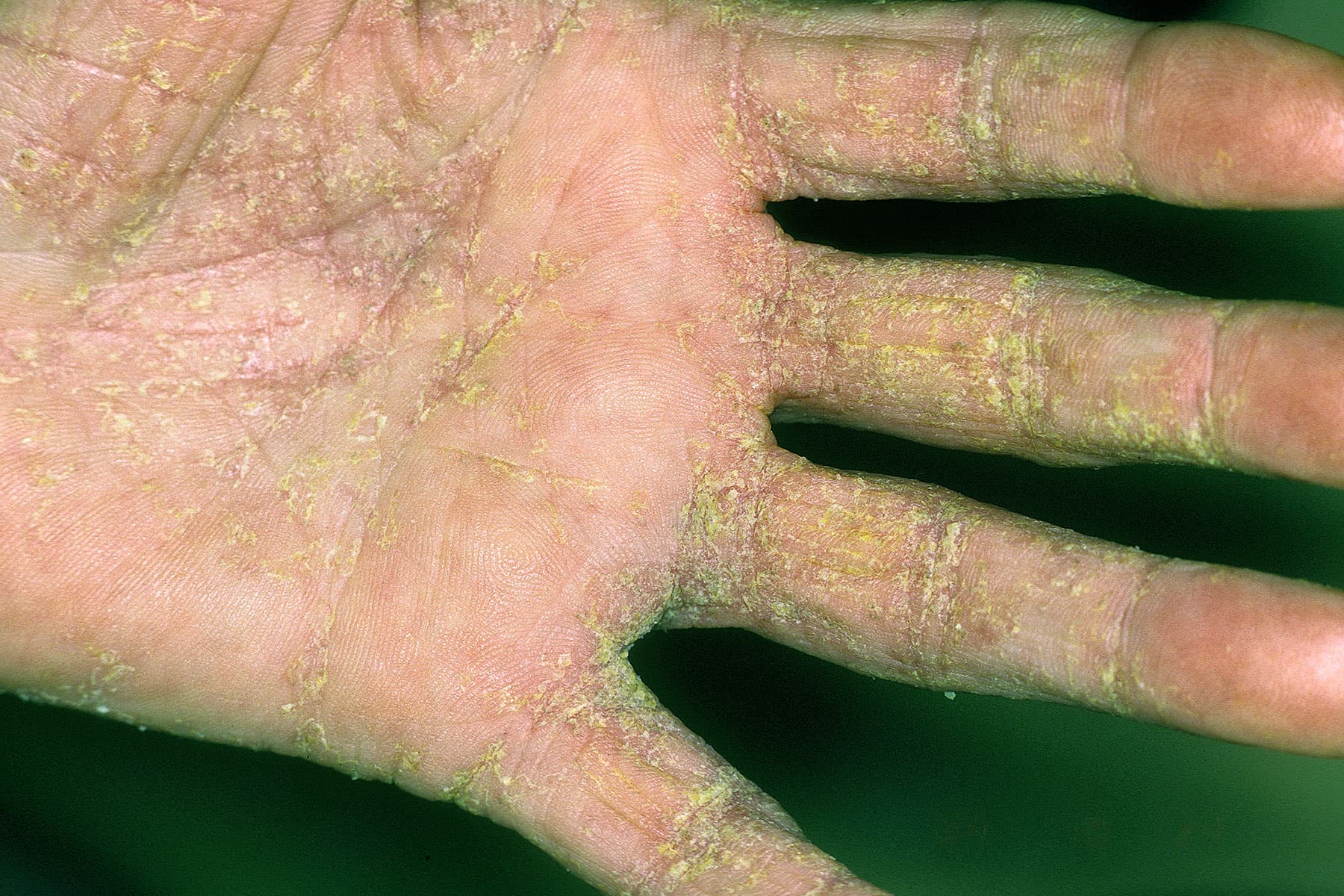 Image Result For Can You Get Scabies From A Dog With Mange