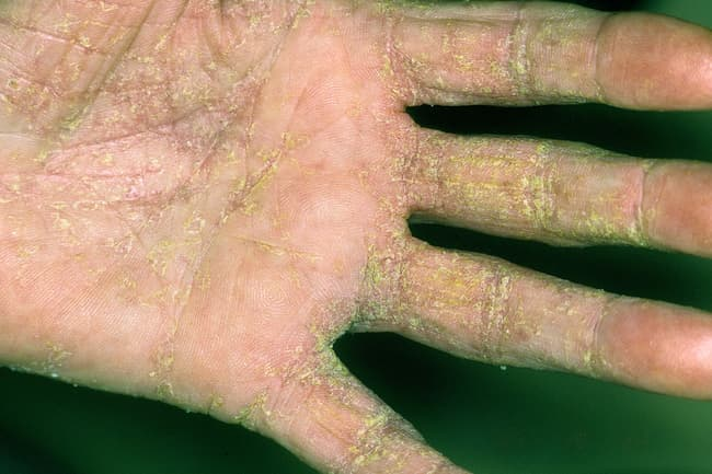 hand with scabies