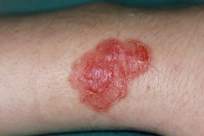red sore on body