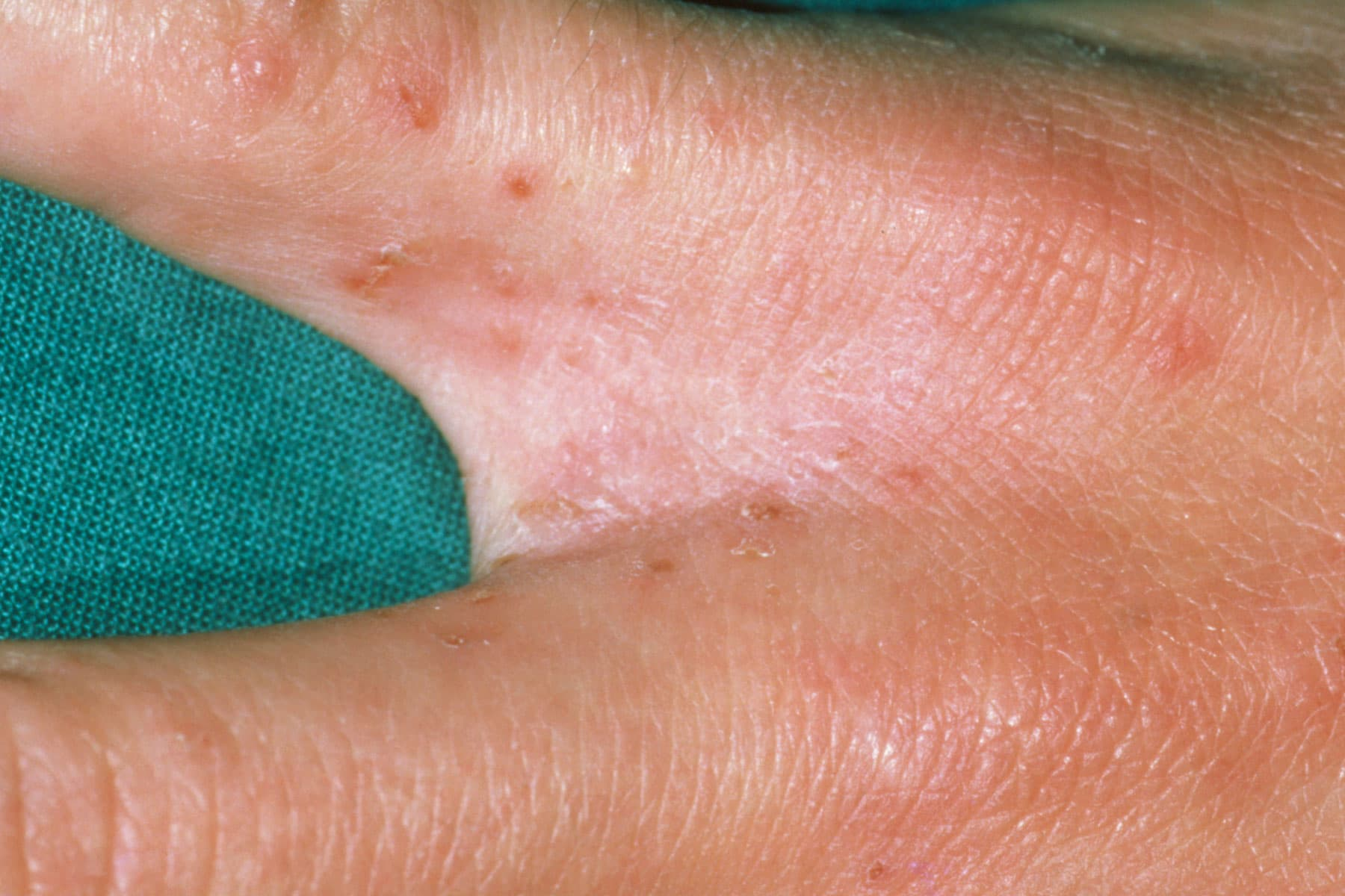 Is scabies a sexually transmitted disease