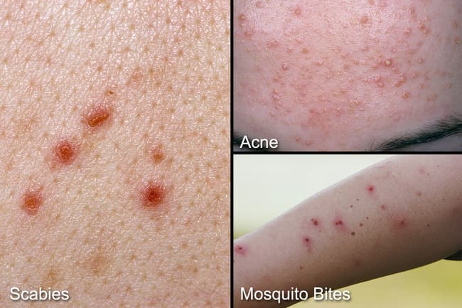 Scabies: Pictures of Rash & Mites, Symptoms, Treatment