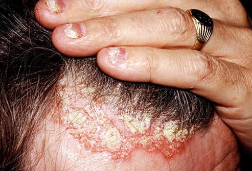 man with scalp psoriasis