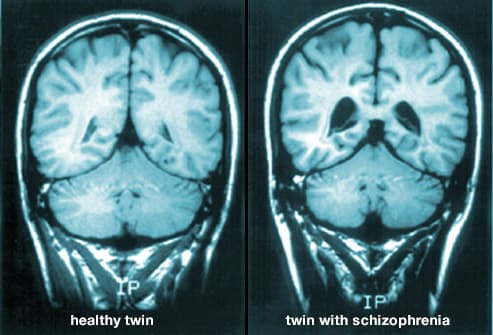 normal brain vs one with schizophrenia