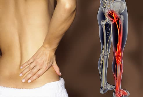 Man suffering from sciatica