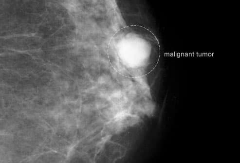 Mammogram Showing Malignant Tumor