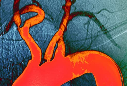 Angiogram of Atheroma Plaque