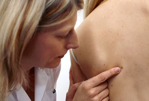 Woman Being Screened for Skin Cancer