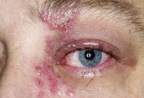 Shingles rash over a man's eye
