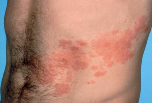 shingles rash on male torso