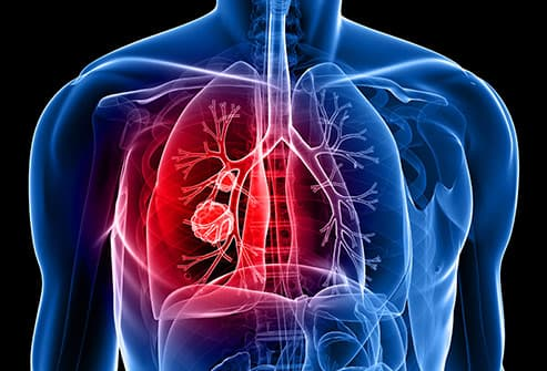Surprising Lung Cancer Symptoms
