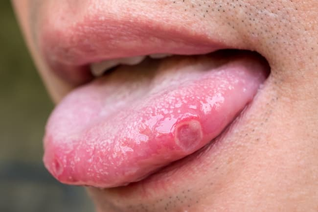 tongue ulcers