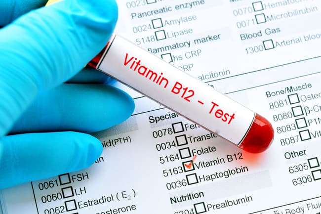 vitamin B12 blood test