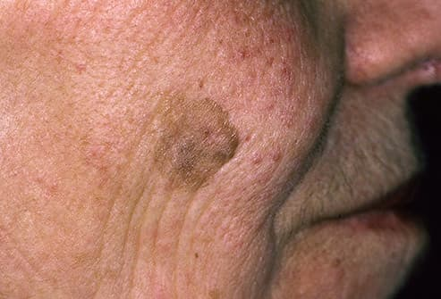 brown patch on face