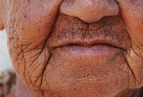woman with deeply wrinkled face