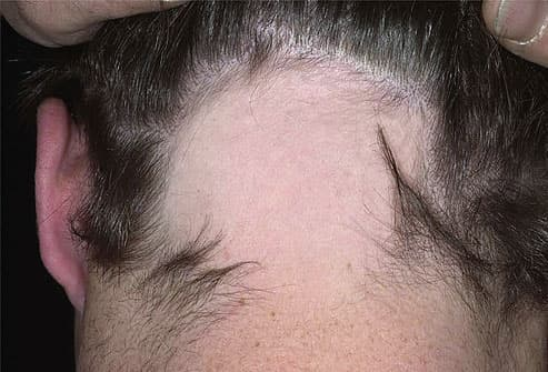 Pictures of what your hair and scalp say about your health an attack on hair follicles pmusecretfo Choice Image