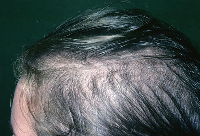 Picture Of Female Pattern Baldness