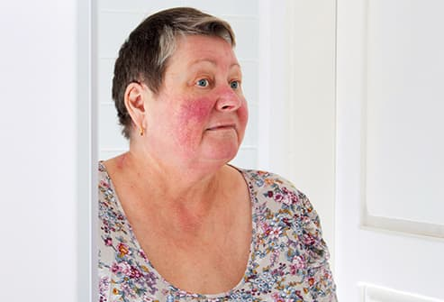 woman with rosacea looks in mirror