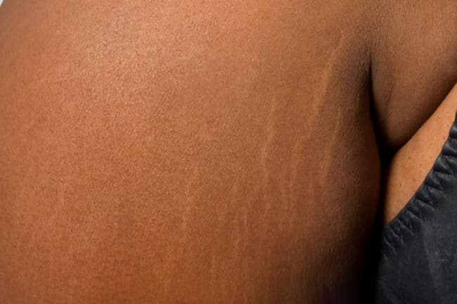 photo of stretch marks on arm