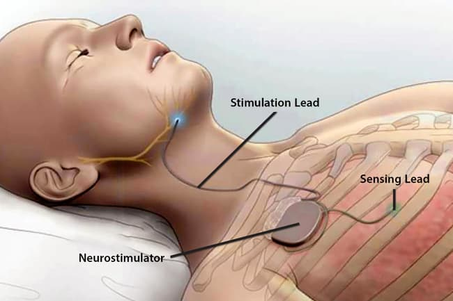 photo of upper airway stimulation