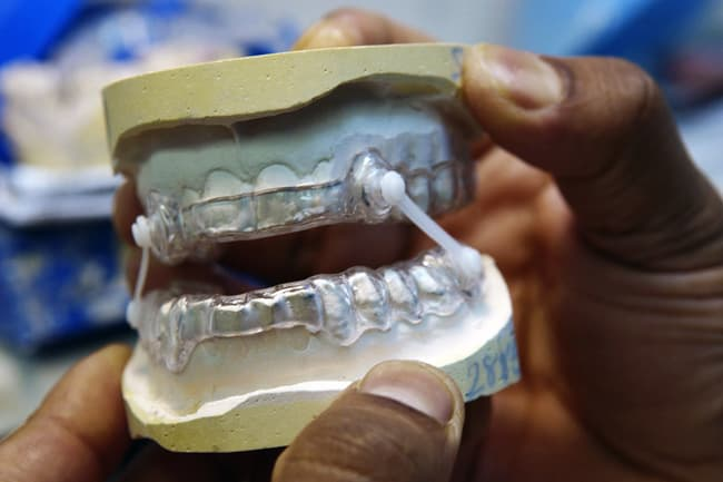 photo of oral appliance