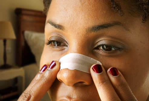 Woman applying a nasal strip