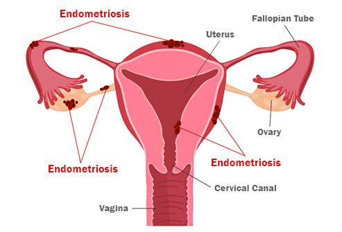 endometriosis illustration