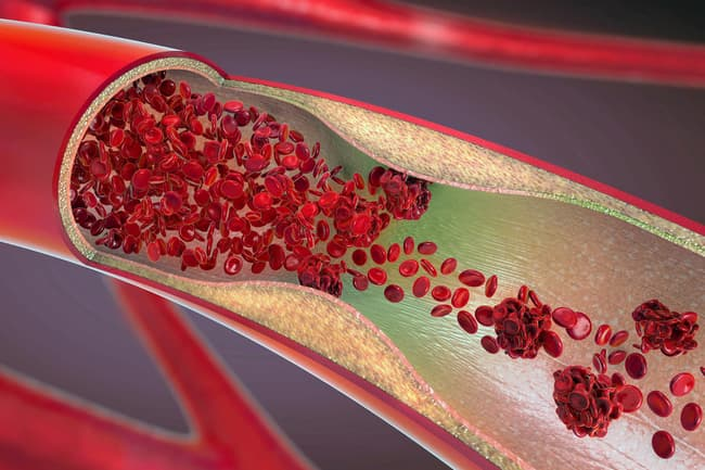 photo of cholesterol in blood vessel