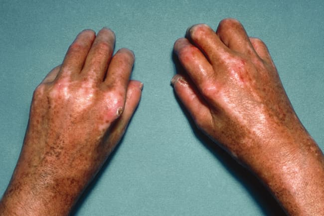 photo of scleroderma