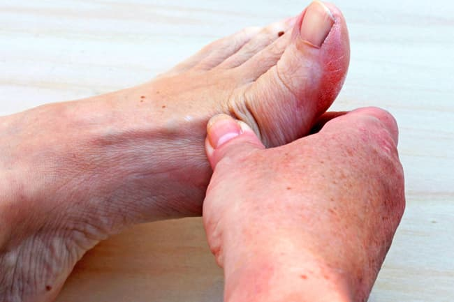Foot joint pain