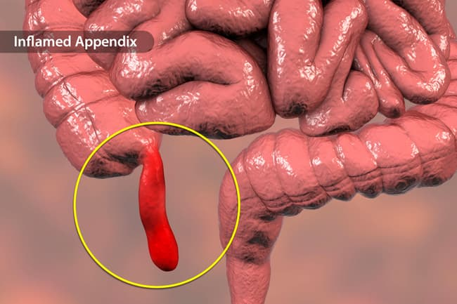 photo of inflamed appendix