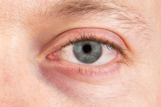 1800ss_thinkstock_rf_dry_eye_close_up