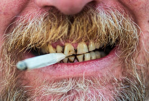 damaged teeth holding cigarette