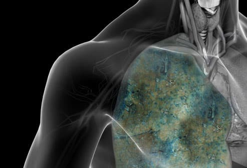 Lung Cancer From Smoking