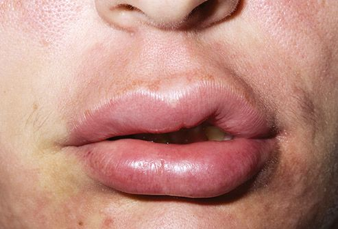 swollen lips allergic reaction