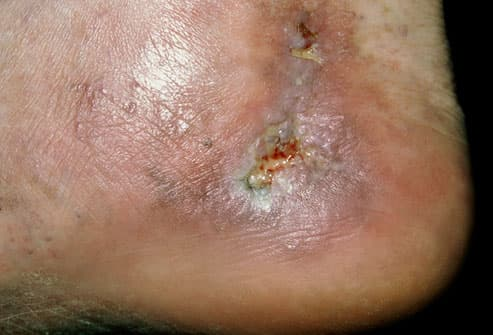 Close-up of varicose ulcer on ankle of patient
